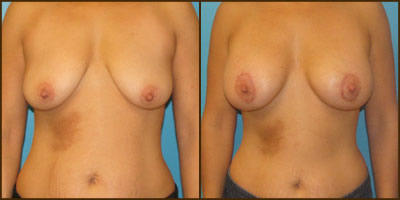 View more Breast Lift before and after photos
